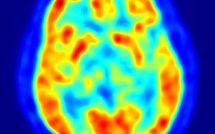 L'esprit peut-il influencer la matière ?